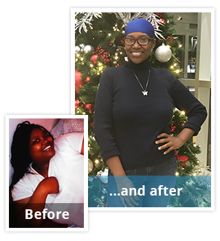 Quentina Lost 160 Lbs*